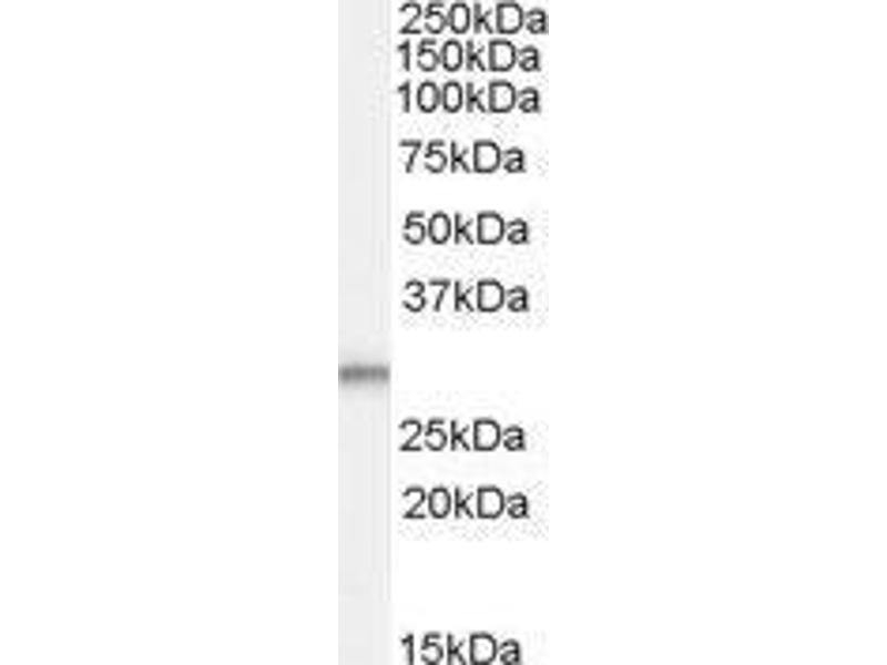 Western Blotting (WB) image for anti-Tumor Protein D52-Like 2 (TPD52L2) (C-Term) antibody (ABIN449564)