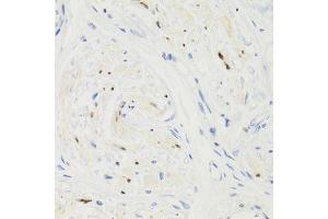 Image no. 12 for anti-Gem (Nuclear Organelle) Associated Protein 2 (GEMIN2) antibody (ABIN3017339)