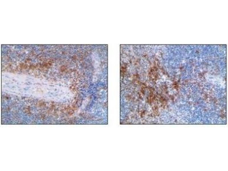 Immunohistochemistry (Paraffin-embedded Sections) (IHC (p)) image for anti-Integrin, alpha X (Complement Component 3 Receptor 4 Subunit) (ITGAX) antibody (ABIN4289490)