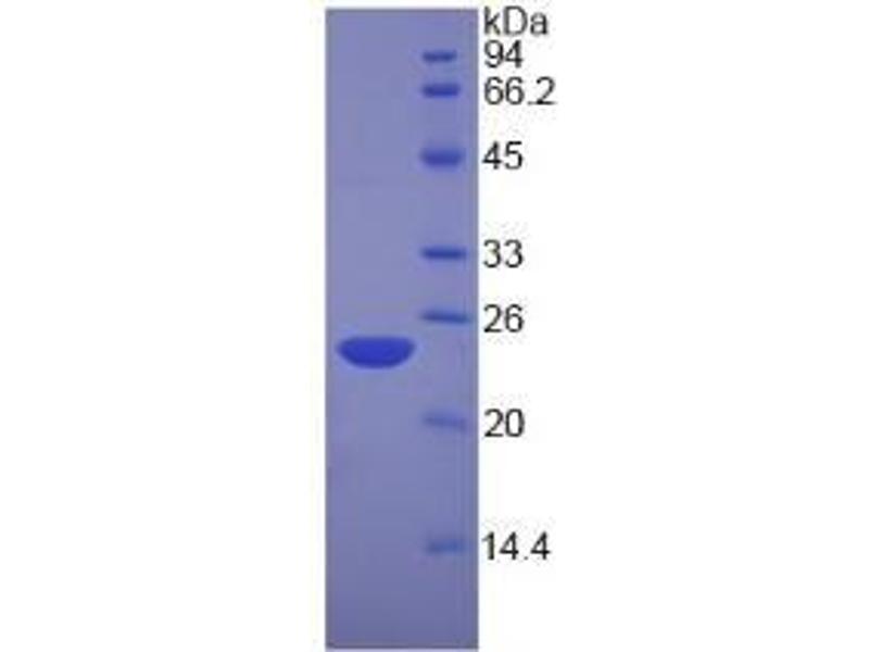 Nucleolin (NCL) ELISA Kit (2)