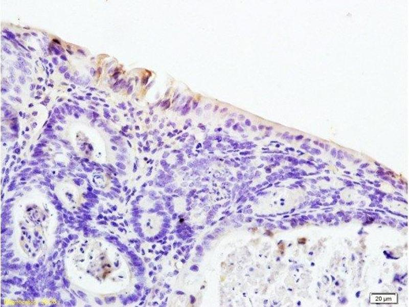 Immunohistochemistry (Paraffin-embedded Sections) (IHC (p)) image for anti-Nuclear Receptor Subfamily 1, Group I, Member 2 (NR1I2) (AA 102-113) antibody (ABIN738816)