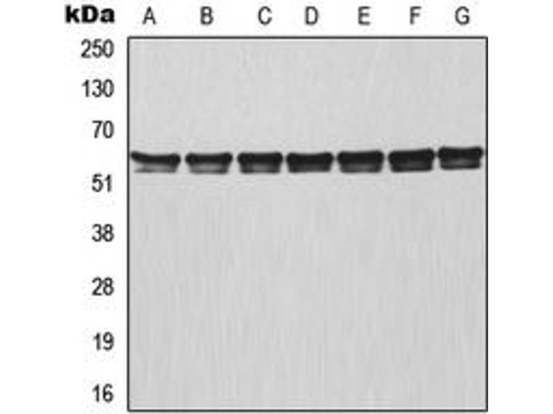 Western Blotting (WB) image for anti-TNF Receptor-Associated Factor 3 (TRAF3) (Center) antibody (ABIN2707194)