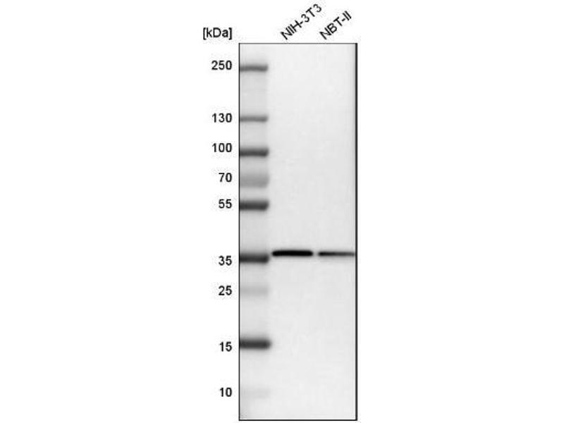 Western Blotting (WB) image for anti-Actin Related Protein 2/3 Complex, Subunit 1B, 41kDa (ARPC1B) antibody (ABIN4278119)