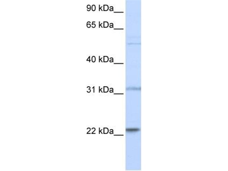 Western Blotting (WB) image for anti-Cell Division Cycle 42 (GTP Binding Protein, 25kDa) (CDC42) (N-Term) antibody (ABIN2792111)