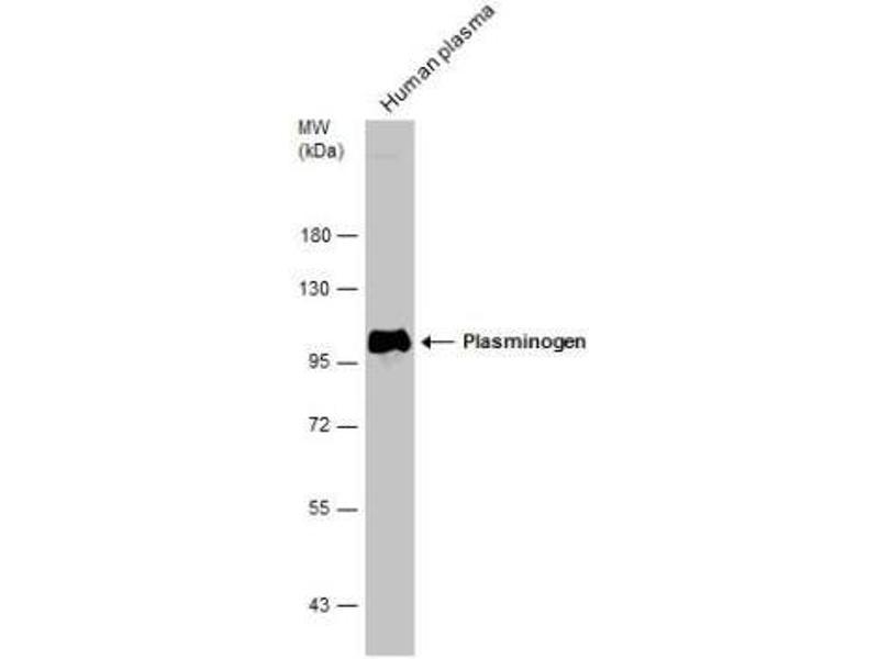 Western Blotting (WB) image for anti-PLG antibody (Plasminogen) (ABIN4346087)