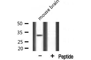 Image no. 3 for anti-MAX-Like Protein X (MLX) antibody (ABIN6258276)