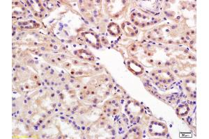 Image no. 2 for anti-Chromosome 6 Open Reading Frame 108 (C6orf108) (AA 103-142) antibody (ABIN872485)