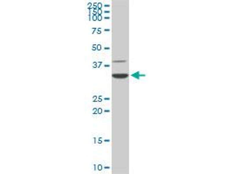 Image no. 4 for anti-Cyclin-Dependent Kinase 4 (CDK4) (AA 211-303) antibody (ABIN560295)