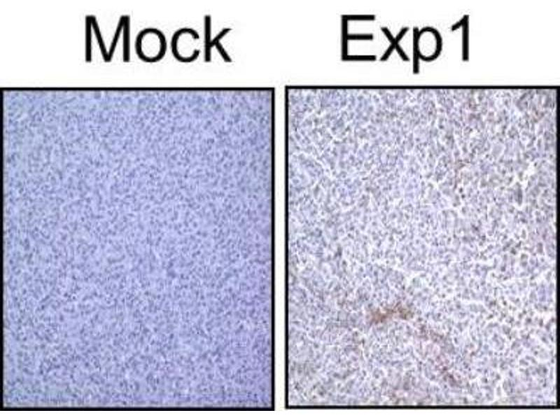 Immunohistochemistry (Paraffin-embedded Sections) (IHC (p)) image for anti-Microtubule-Associated Protein 1 Light Chain 3 beta (MAP1LC3B) (N-Term) antibody (ABIN153145)