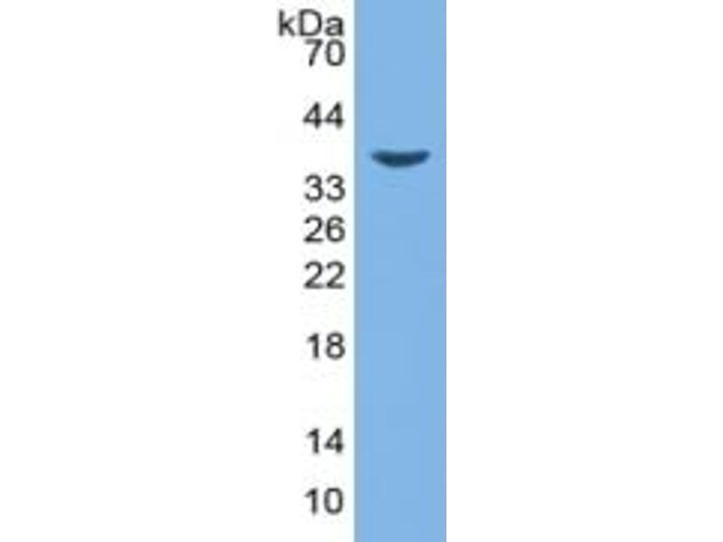Image no. 4 for Haptoglobin (HP) ELISA Kit (ABIN6574214)