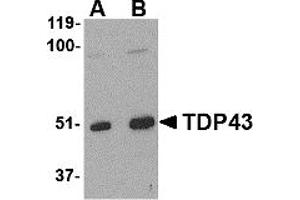 Image no. 1 for anti-TAR DNA Binding Protein (TARDBP) (Middle Region) antibody (ABIN1031116)