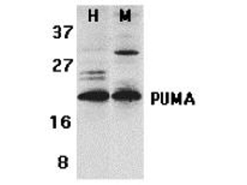 Western Blotting (WB) image for anti-BBC3 antibody (BCL2 Binding Component 3) (C-Term) (ABIN1030609)