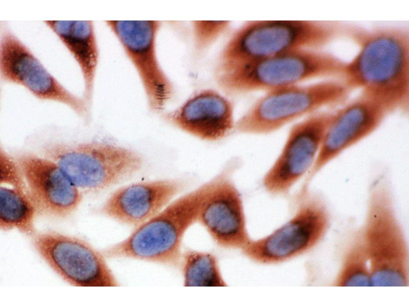 Immunohistochemistry (IHC) image for anti-Calpain 1, Large Subunit (CAPNL1) (AA 312-326), (Middle Region) antibody (ABIN3044292)