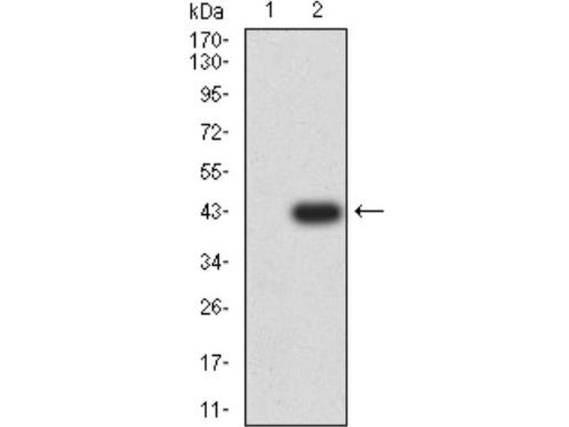 Western Blotting (WB) image for anti-Glutamate Receptor, Ionotropic, Kainate 5 (GRIK5) antibody (ABIN5681193)