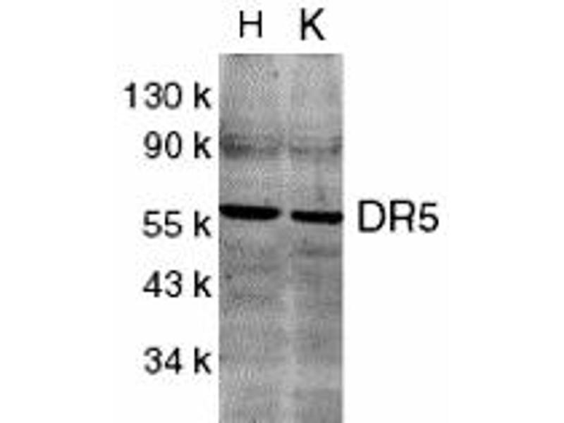 Western Blotting (WB) image for anti-Tumor Necrosis Factor Receptor Superfamily, Member 10b (TNFRSF10B) (C-Term) antibody (ABIN1030367)