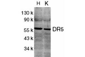 Western Blotting (WB) image for anti-TNFRSF10B antibody (Tumor Necrosis Factor Receptor Superfamily, Member 10b) (C-Term) (ABIN1030367)