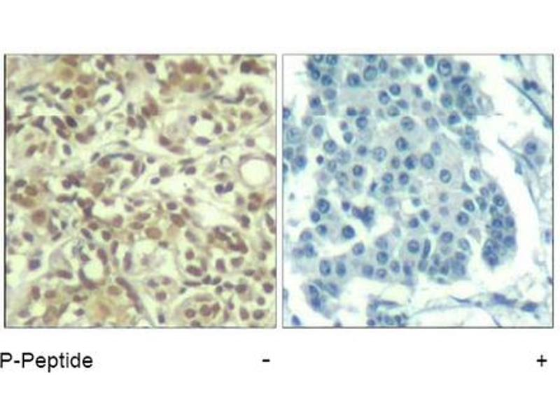 image for anti-V-Akt Murine Thymoma Viral Oncogene Homolog 1 (AKT1) (pThr450) antibody (ABIN319271)