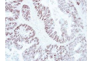 Immunohistochemistry (Paraffin-embedded Sections) (IHC (p)) image for anti-SATB Homeobox 1 (SATB1) (C-Term) antibody (ABIN4352121)