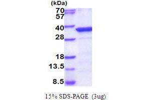 Image no. 1 for Protein Phosphatase, Mg2+/Mn2+ Dependent, 1D (PPM1D) (AA 98-375) protein (His tag) (ABIN5854111)