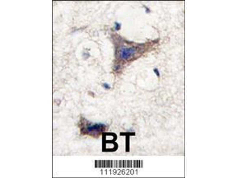 Immunohistochemistry (IHC) image for anti-Sprouty-Related, EVH1 Domain Containing 1 (SPRED1) (AA 302-331), (C-Term) antibody (ABIN388229)