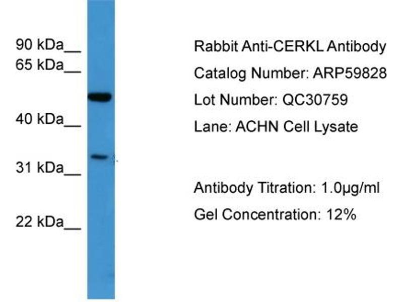Western Blotting (WB) image for anti-Ceramide Kinase-Like (CERKL) (N-Term) antibody (ABIN2788233)