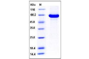 Image no. 1 for Acetoacetyl-CoA Synthetase (AACS) (AA 1-672), (full length) protein (His tag) (ABIN2003994)