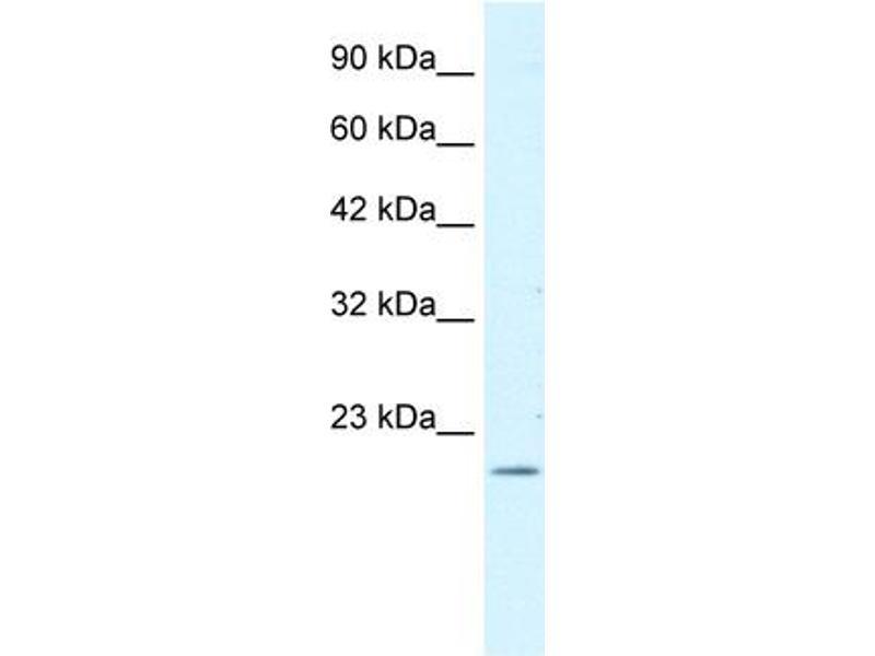 Western Blotting (WB) image for anti-Forkhead Box P2 (FOXP2) (N-Term) antibody (ABIN2778104)