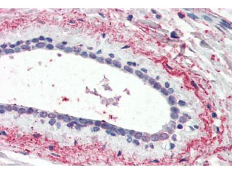 Immunohistochemistry (Paraffin-embedded Sections) (IHC (p)) image for anti-WNT3 antibody (Wingless-Type MMTV Integration Site Family, Member 3) (AA 315-329) (ABIN461935)
