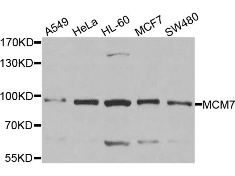Image no. 1 for anti-Minichromosome Maintenance Complex Component 7 (MCM7) antibody (ABIN6567128)