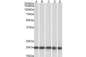 Image no. 2 for anti-Ferritin, Light Polypeptide (FTL) (C-Term) antibody (ABIN334402)