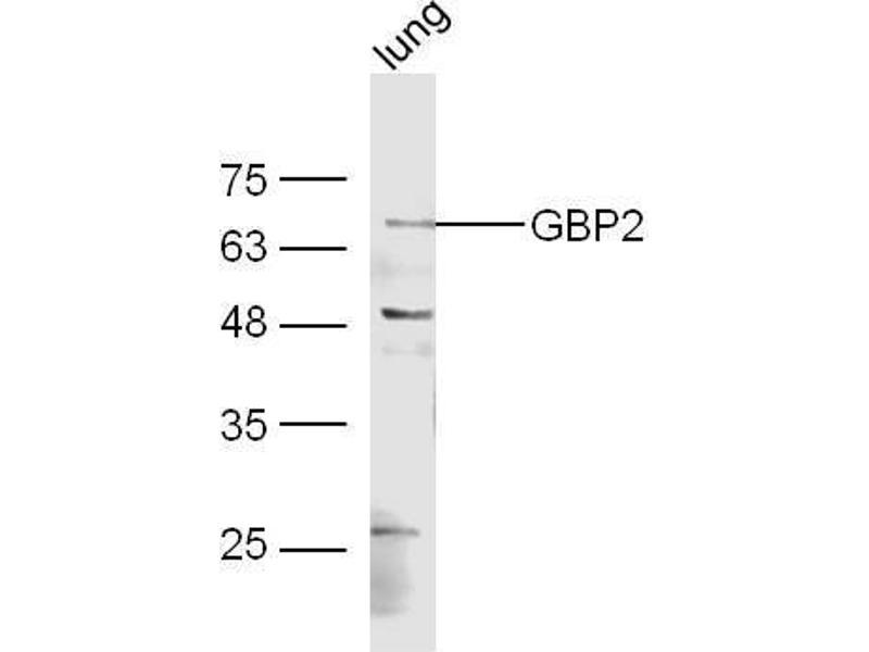 Western Blotting (WB) image for anti-Guanylate Binding Protein 2, Interferon-Inducible (GBP2) (AA 185-225) antibody (ABIN1385697)