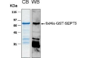 Image no. 1 for Septin 5 (SEPT5) (AA 1-369) protein (His-GST) (ABIN2703707)