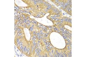 Immunohistochemistry (IHC) image for anti-Vascular Endothelial Growth Factor B (VEGFB) antibody (ABIN3023000)