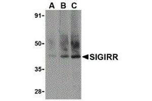 Image no. 1 for anti-Single Immunoglobulin and Toll-Interleukin 1 Receptor (TIR) Domain (SIGIRR) (C-Term) antibody (ABIN2476475)