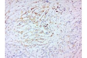 Immunohistochemistry (Paraffin-embedded Sections) (IHC (p)) image for anti-Matrix Metalloproteinase 2 (MMP2) (AA 409-434) antibody (ABIN707426)