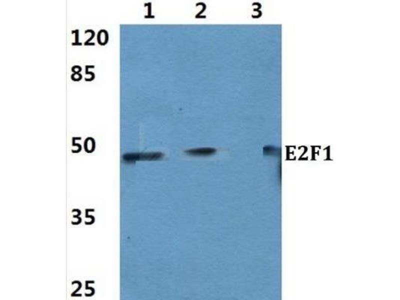 Western Blotting (WB) image for anti-E2F1 antibody (E2F Transcription Factor 1) (ABIN4306766)