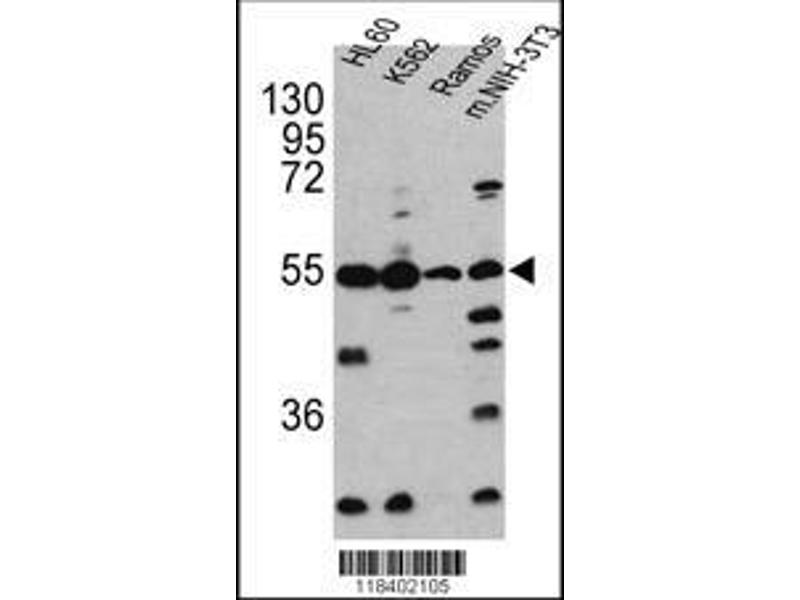 Western Blotting (WB) image for anti-Caspase 2, Apoptosis-Related Cysteine Peptidase (CASP2) (AA 198-226), (Center) antibody (ABIN388122)