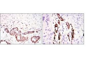 Immunohistochemistry (IHC) image for anti-ACTA2 / Aortic Smooth Muscle Actin antibody (ABIN1105232)