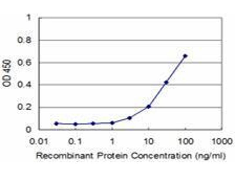 Immunohistochemistry (IHC) image for anti-Paired Box 8 (PAX8) (AA 300-378) antibody (ABIN394218)