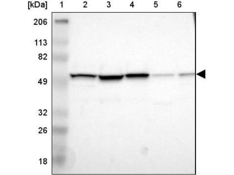 Western Blotting (WB) image for anti-IMP (Inosine 5'-Monophosphate) Dehydrogenase 2 (IMPDH2) antibody (ABIN4325727)