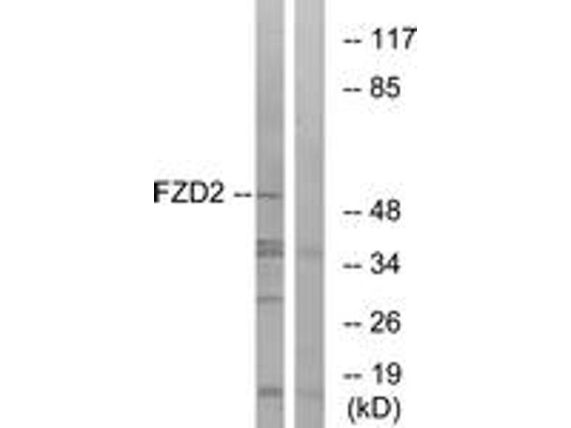Western Blotting (WB) image for anti-FZD2 Antikörper (Frizzled Family Receptor 2) (ABIN1535609)