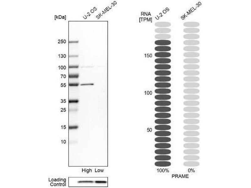 Western Blotting (WB) image for anti-Preferentially Expressed Antigen in Melanoma (PRAME) antibody (ABIN4347184)
