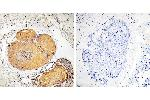 Immunohistochemistry (IHC) image for anti-FADD antibody (Fas (TNFRSF6)-Associated Via Death Domain) (Ser191) (ABIN2164813)