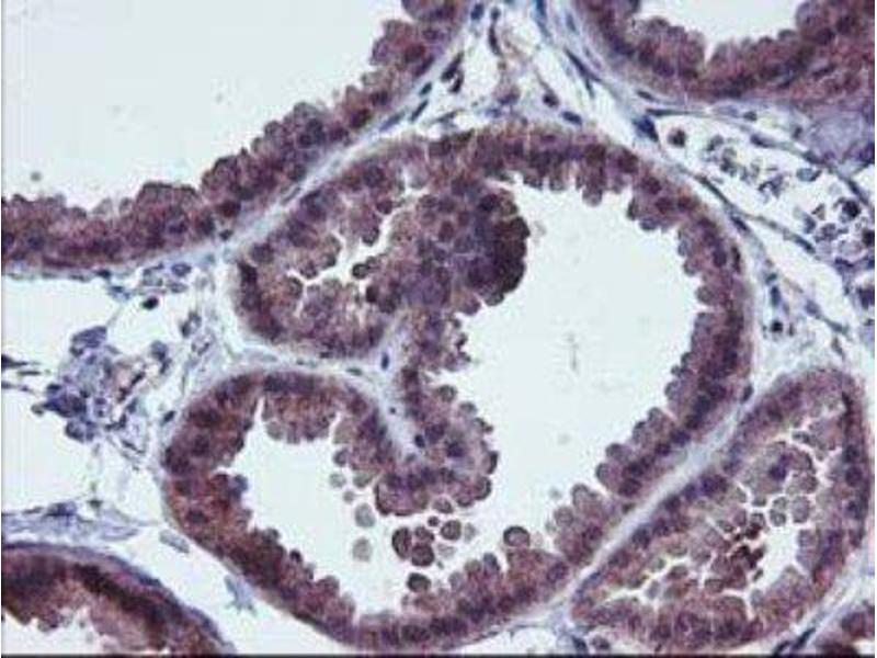 Immunohistochemistry (Paraffin-embedded Sections) (IHC (p)) image for anti-FGFR2 antibody (Fibroblast Growth Factor Receptor 2) (ABIN4311538)