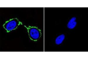 Immunofluorescence (IF) image for anti-Discs, Large Homolog 4 (Drosophila) (DLG4) antibody (ABIN4348100)