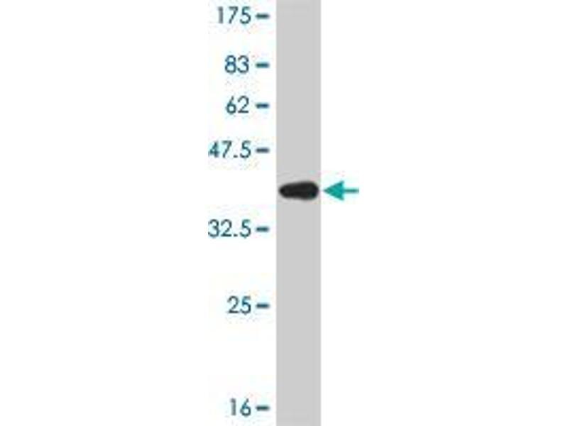 Western Blotting (WB) image for anti-Interferon Regulatory Factor 5 (IRF5) (AA 395-505) antibody (ABIN4948227)