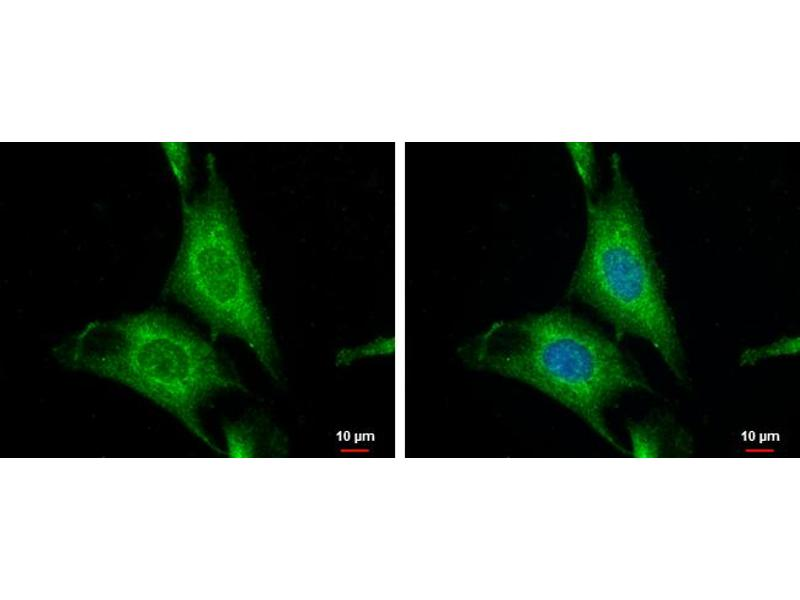 Immunofluorescence (IF) image for anti-WNT10A antibody (Wingless-Type MMTV Integration Site Family, Member 10A) (Center) (ABIN2856795)