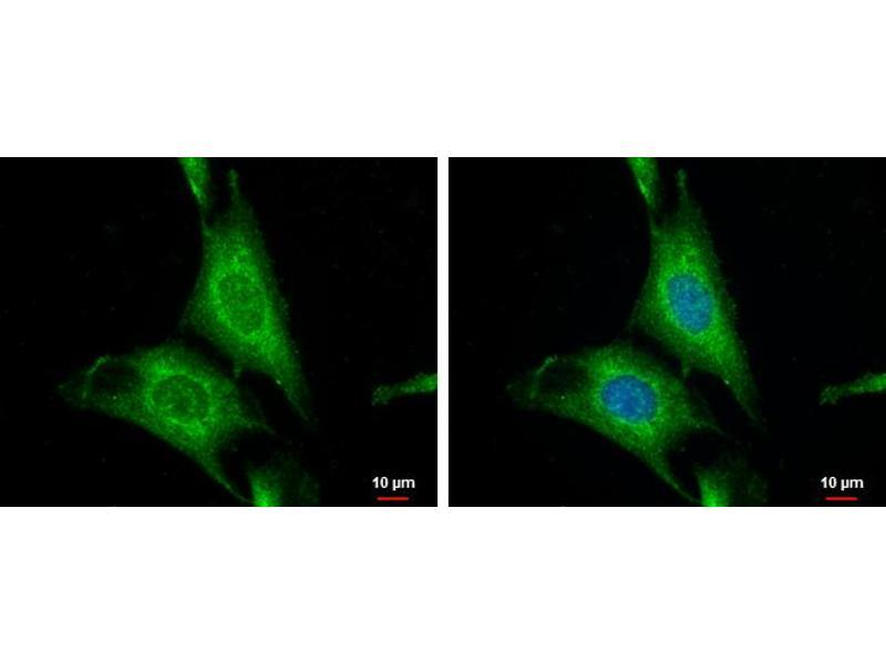 Immunofluorescence (IF) image for anti-Wingless-Type MMTV Integration Site Family, Member 10A (WNT10A) (Center) antibody (ABIN2856795)