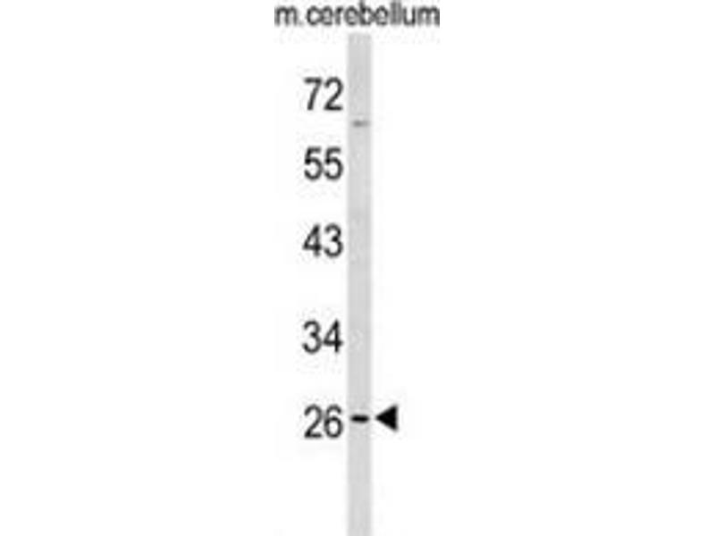 Western Blotting (WB) image for anti-Peroxisomal Membrane Protein 4 (PXMP4) (AA 134-164), (Middle Region) antibody (ABIN954392)