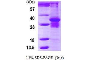 Image no. 1 for Proteasome (Prosome, Macropain) Subunit, beta Type, 7 (PSMB7) (AA 44-277) protein (His tag) (ABIN6386905)